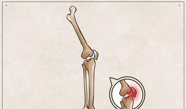 """一到冬天膝盖就""""发凉""""?一招让你的膝关节暖起来!"""